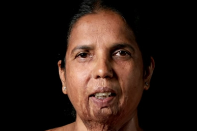 Creating jobs for acid-attack survivors with #SkillsNotScars